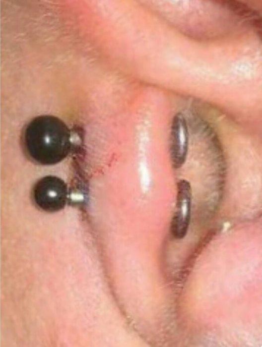 Piercing entzündet Piercing heilt nicht ab